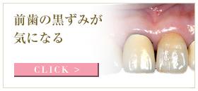 前歯の黒すみが気になる